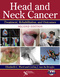 Head and Neck Cancer, Treatment, Rehabilitation, and Outcomes