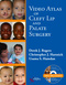 Video Atlas of Cleft Lip and Palate Surgery
